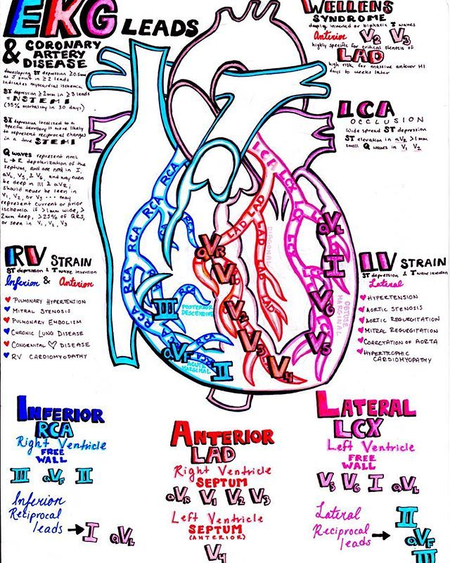 Ekg Leads And The Coronary Arteries   This Plus My 2 Other
