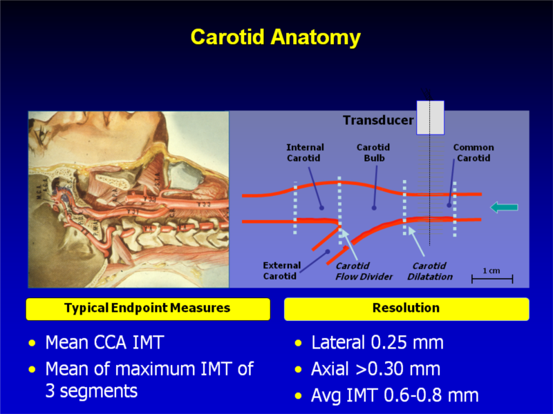 Amazing Carotid Bulb Anatomy Photos - Human Anatomy Images ...