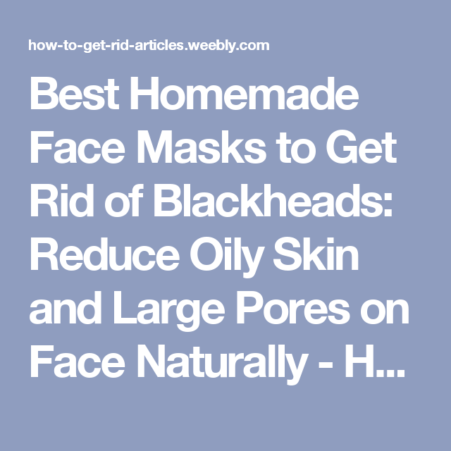 how to get rid of blackheads and close pores