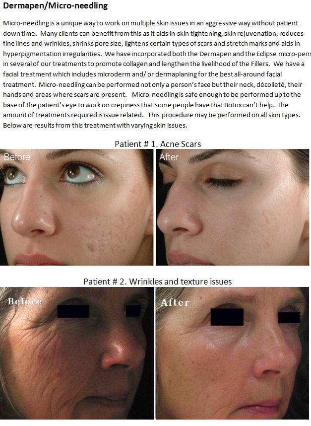 Pin By Skinmd Llc On Treatments At Synergy Combination Skin Care Dermapen Makeup Skin Care