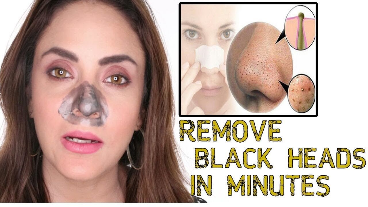 How To Get Rid Of Blackheads On Forehead And Nose