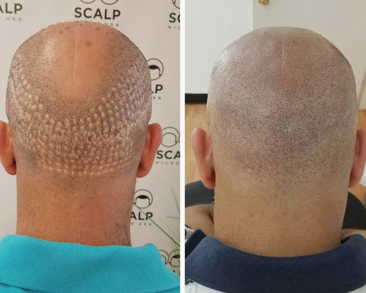 Hair Transplant on Twitter  Microblading eyebrows, Hair loss