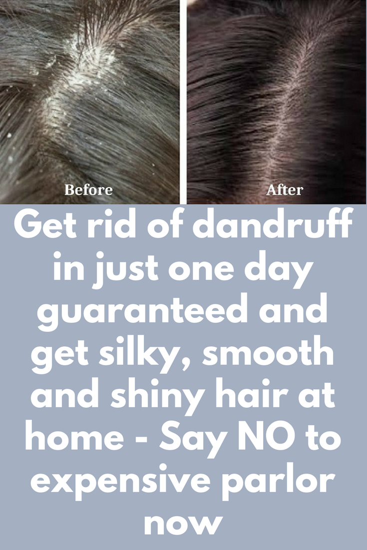 a01b44f89354efb88d025395618e9cea - How To Get Rid Of Dandruff Naturally In One Day