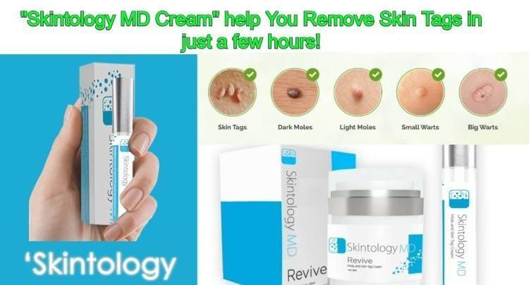 #formulated #Natural #Remover #Reviews #Skin #Skintology #Tag SkinTology MD Reviews, Looking for a Skin Tag Remover Formulated as a natural remedy to combat skin tags? skintology md ingredients #HomemadeSkinCareFace #skintagremedy