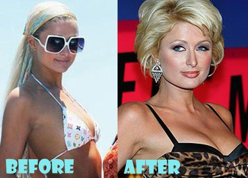 518d6586e6 Paris Hilton Plastic Surgery Before and After Breast Implant