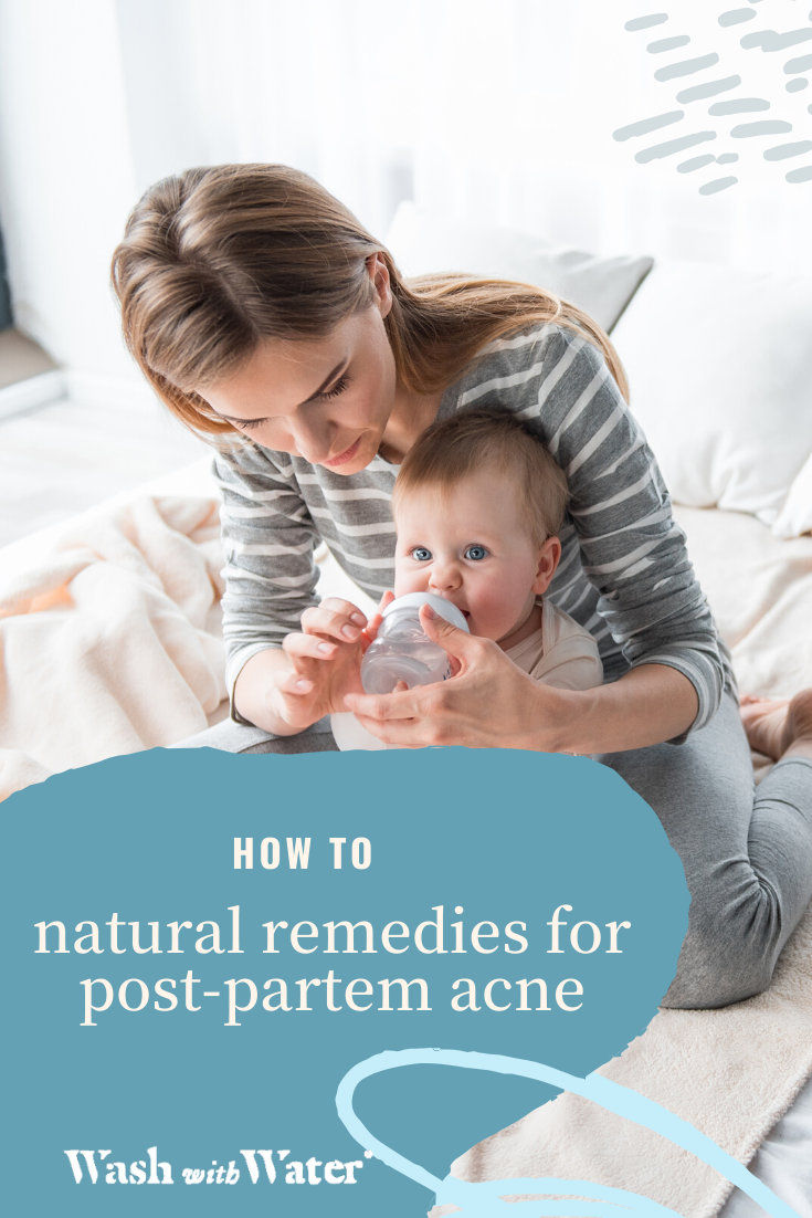 HOW TO natural remedies for postpartem acne (With images