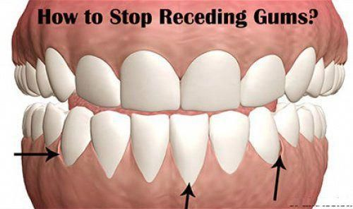 Grow Back Your Receding Gums With These Home Remedies Healthy Gum