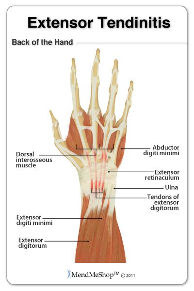 Extensor tendinitis can be caused from overuse of the wrist during ...