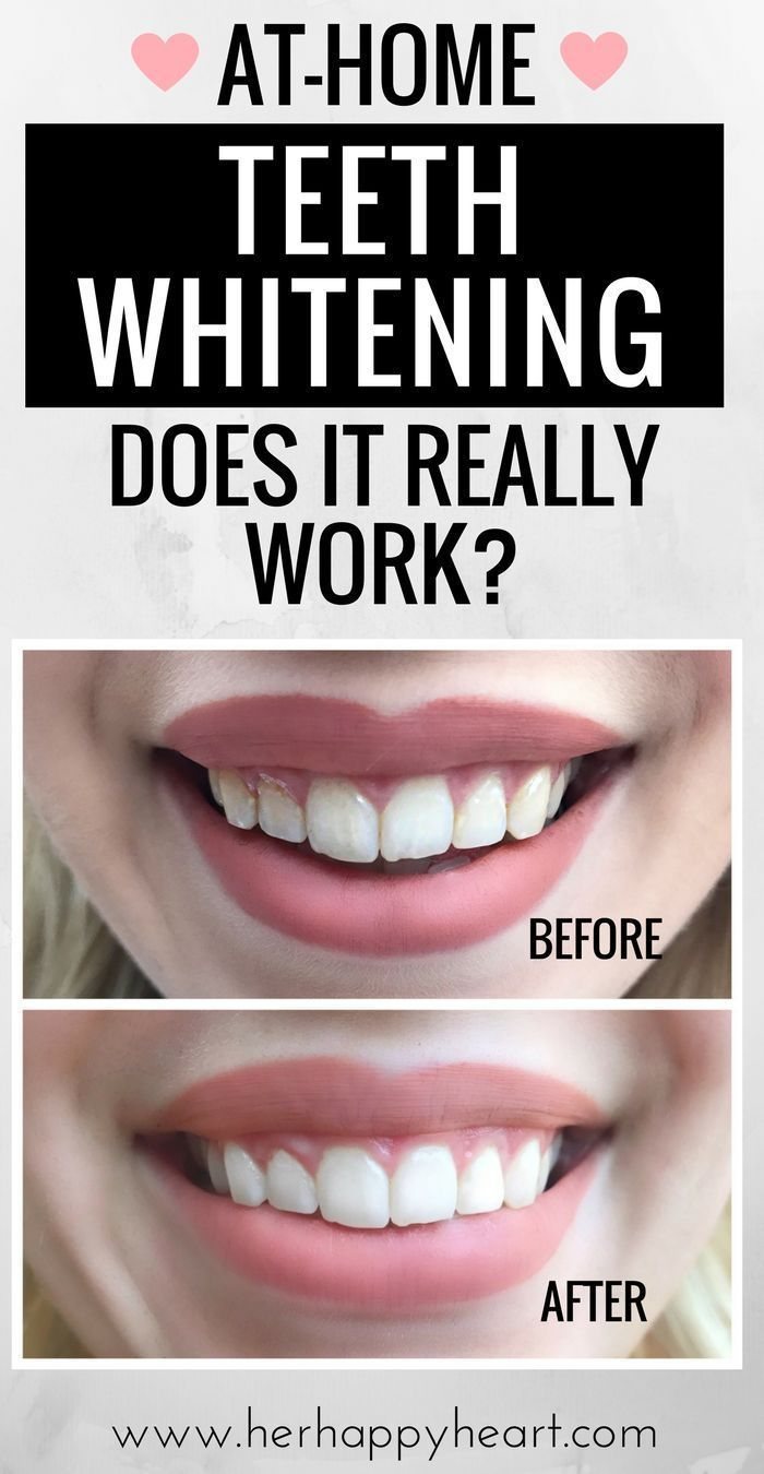 At-Home Teeth Whitening... Does It Really Work? Teeth Whitening... Does It Really Work?   Teeth Whitening for Sensitive Teeth   Whitening Coffee Stains   Teeth Whitening Reviews
