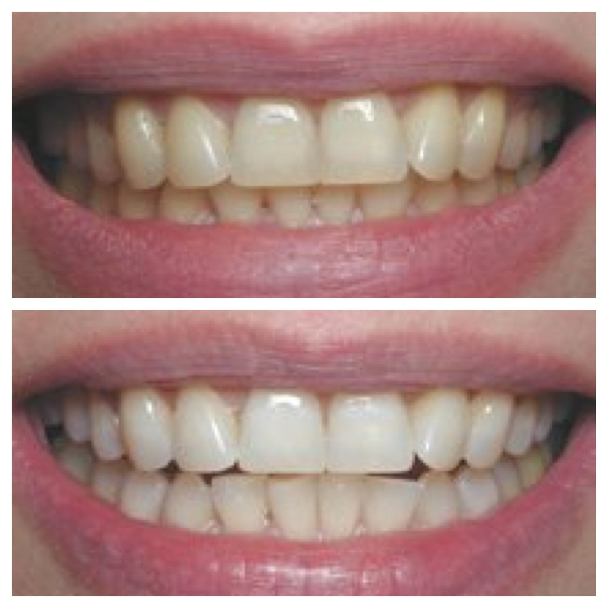 Another Before And After Picture With Our Zoom Whitening Machine