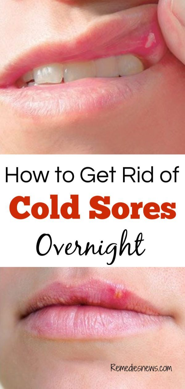 How to Get Rid of Cold Sores Overnight: 11 Best Home Remedies. Cold sore  which is also called fever bliste… | Cold sores remedies, Natural cough  remedies, Cold sore