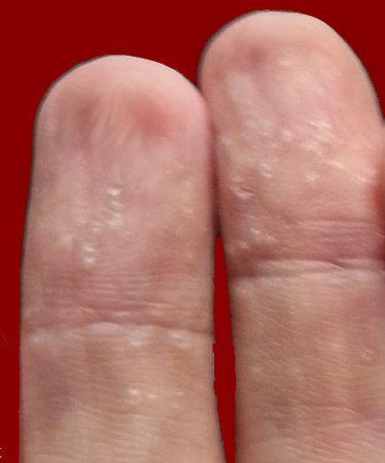 peeling skin on fingers treatment
