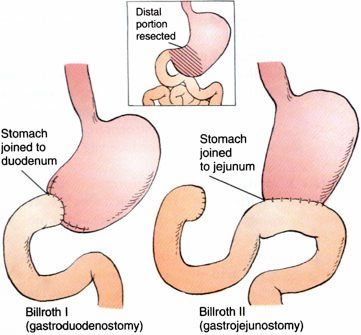 Subtotal Gastrectomy Removes Acid Secreting Portions Of The Stomach
