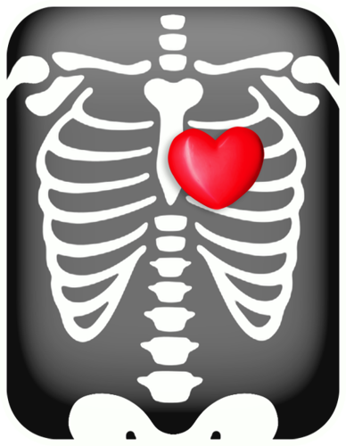 Chest x-ray with heart | Doctors | Pinterest | Scrap, Clip ...