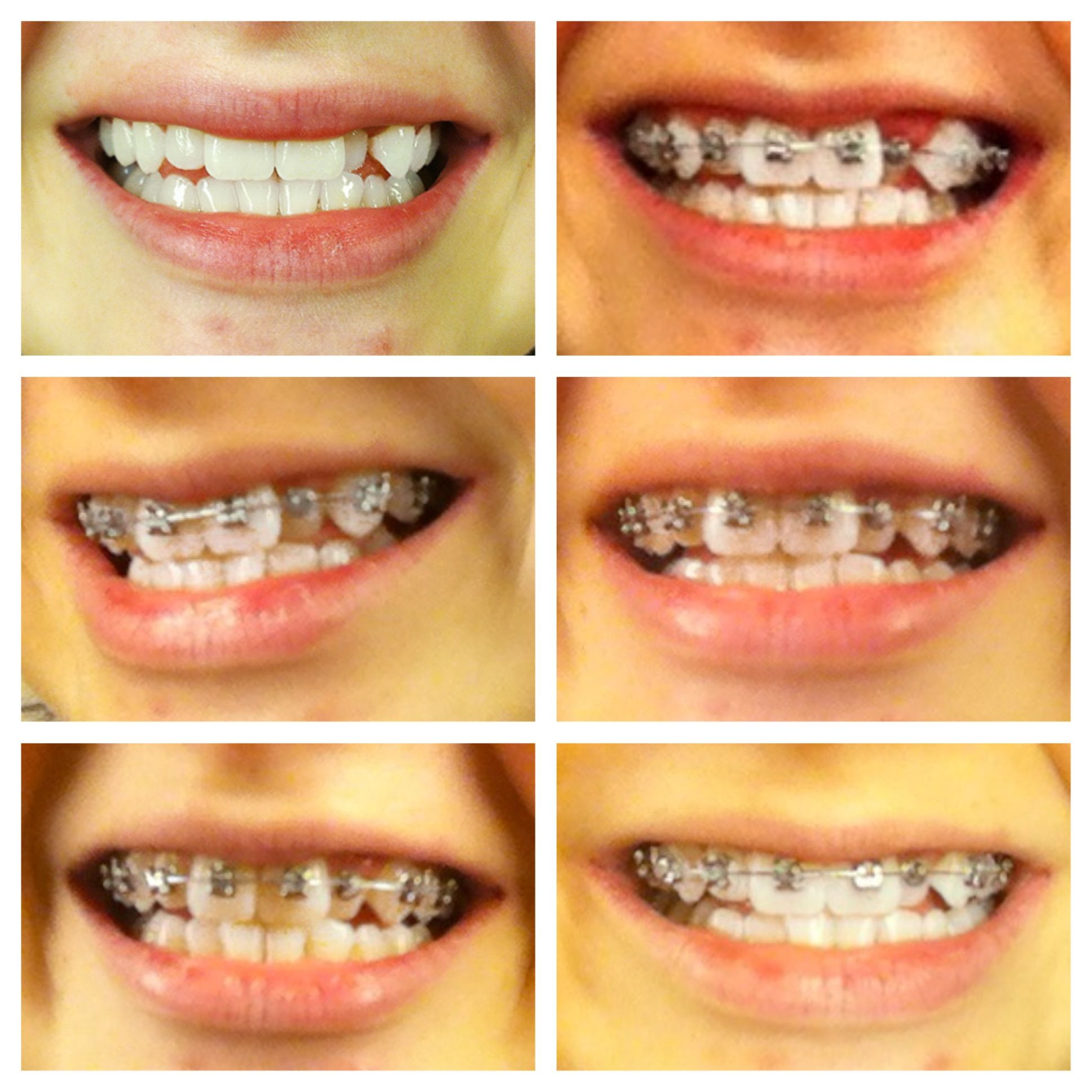 The Braces Survival Guide: New Braces Blog! Great Tips For