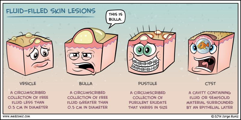 fluid-filled skin lesions | <3 medicine | pinterest | photos, Skeleton