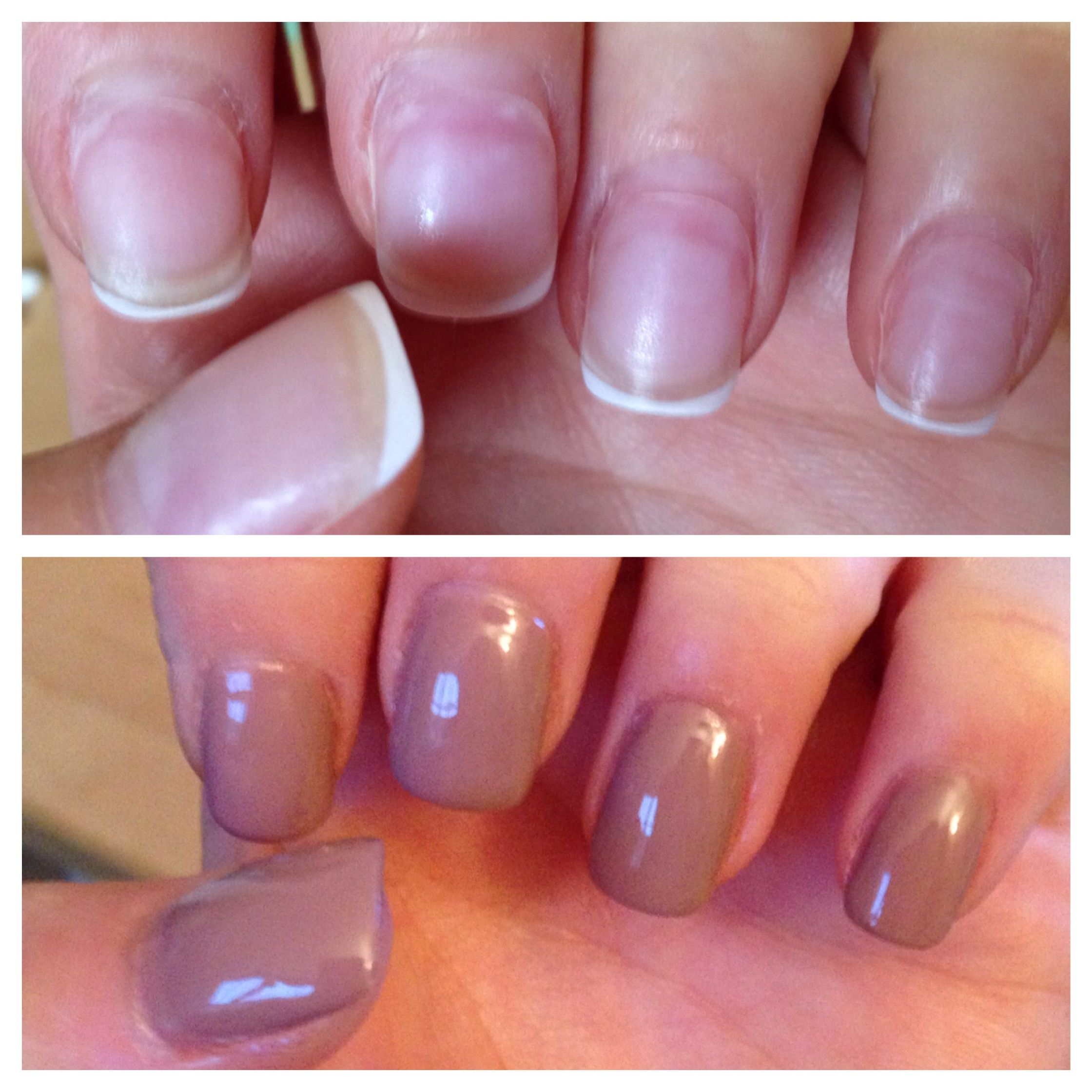 Grown Out Acrylic Nails To Diy Mani Before And After Nails Acrylic Nails Hair And Nails