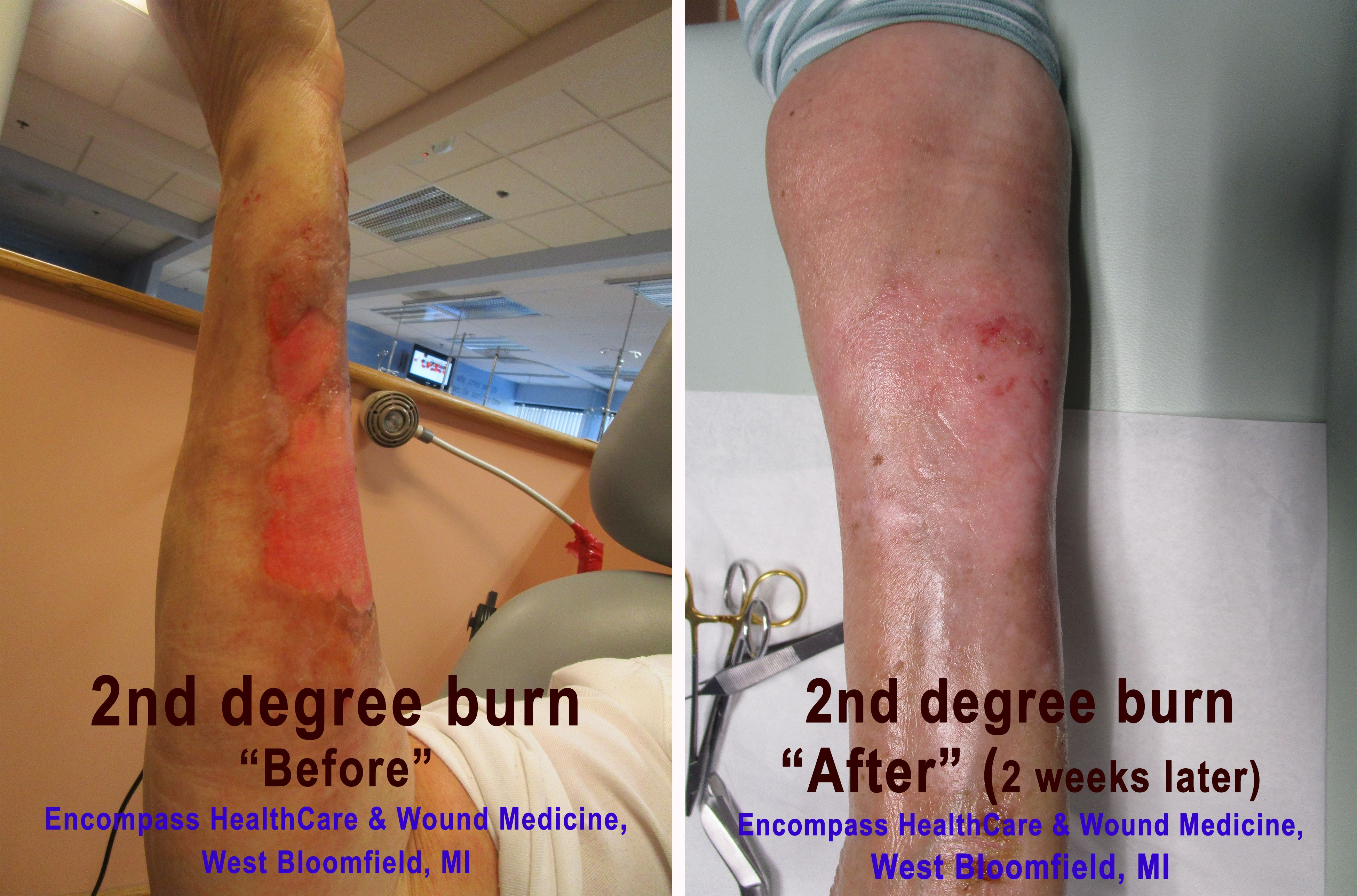 hyperbaric oxygen therapy can help with burns | severe burn