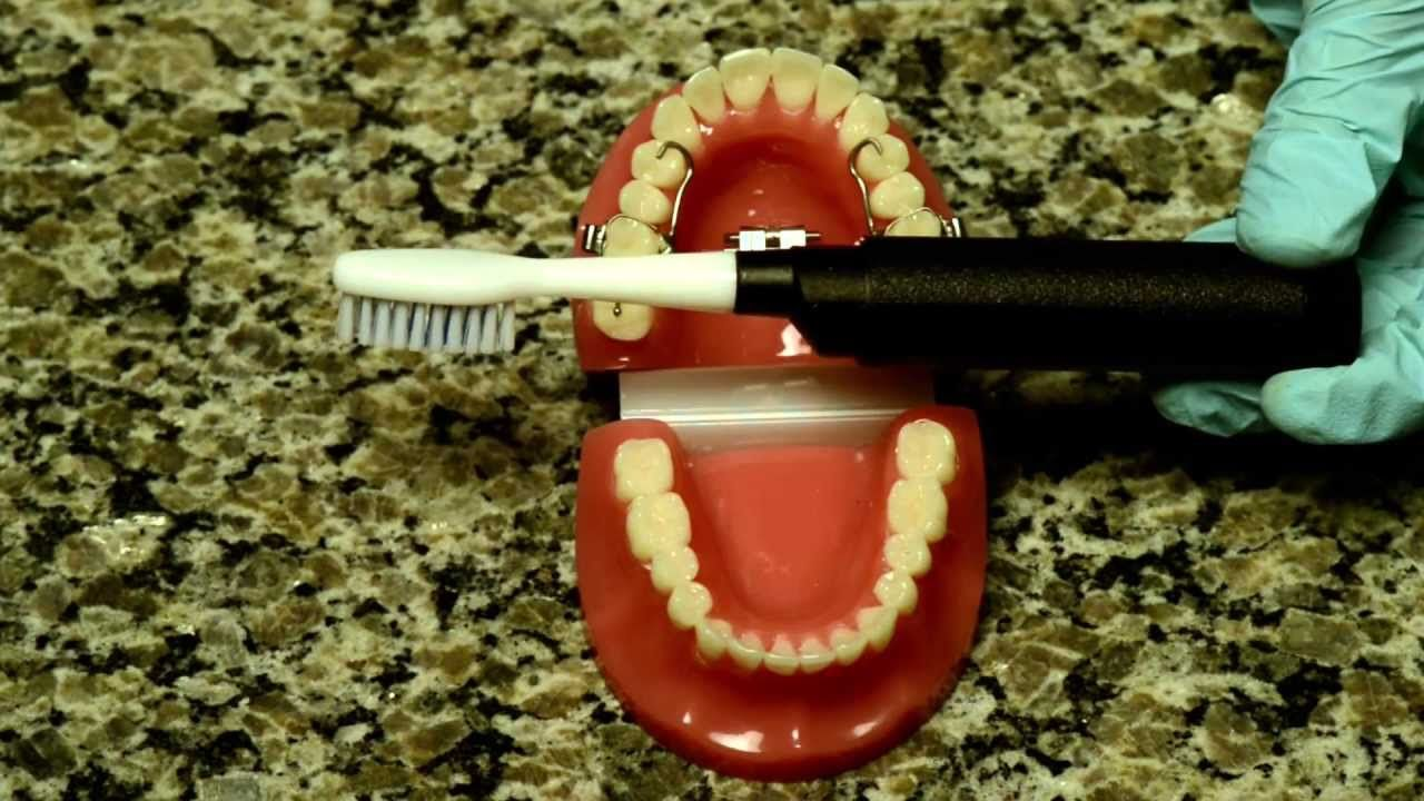 How to care for your rapid palatal expander and how to