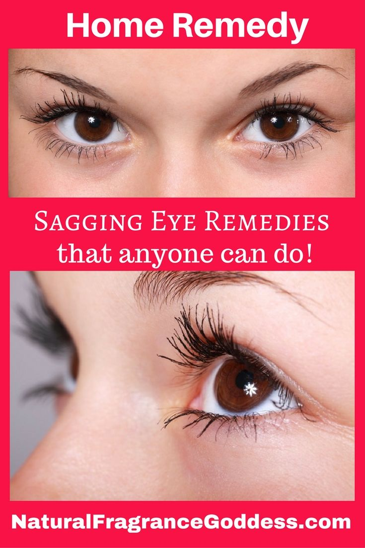 Home remedies sagging eyelids easy remedies for hooded