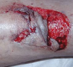 Skin Tear Integumentary System Wound Care Injury