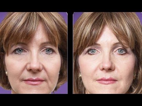 Consider, marionette facial lines consider