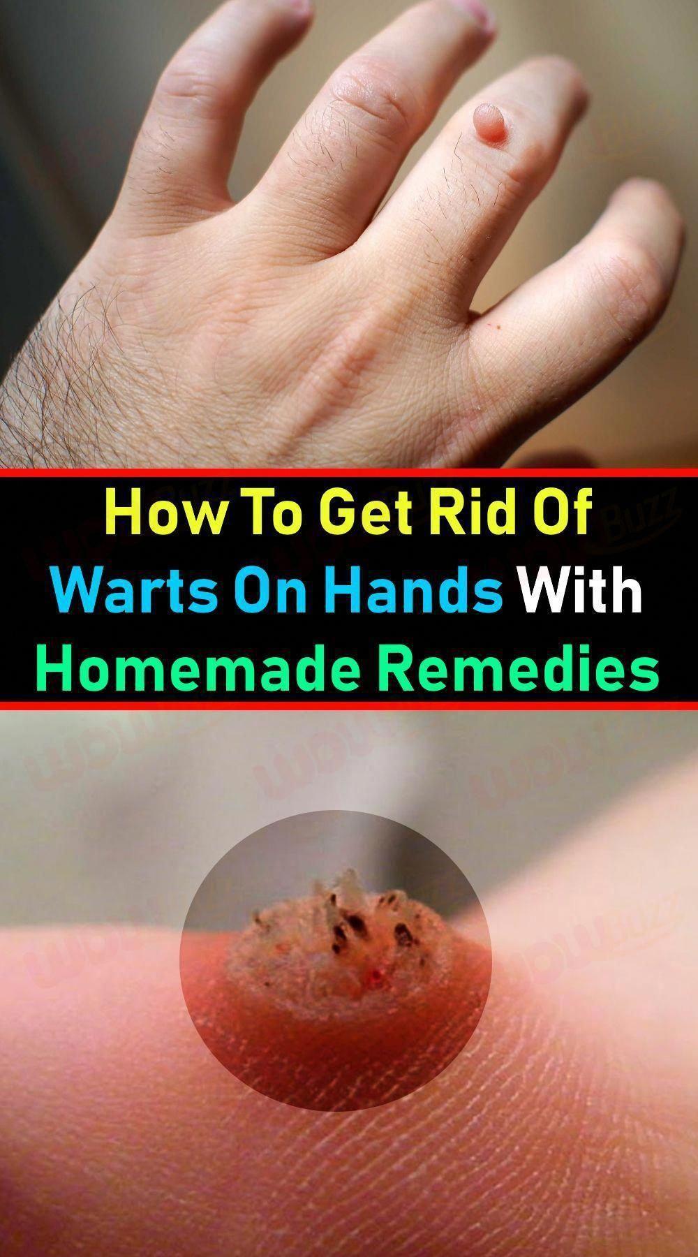 a068b3d8a2b9192524521c38e0245108 - How To Get Rid Of Tiny Warts On Hands