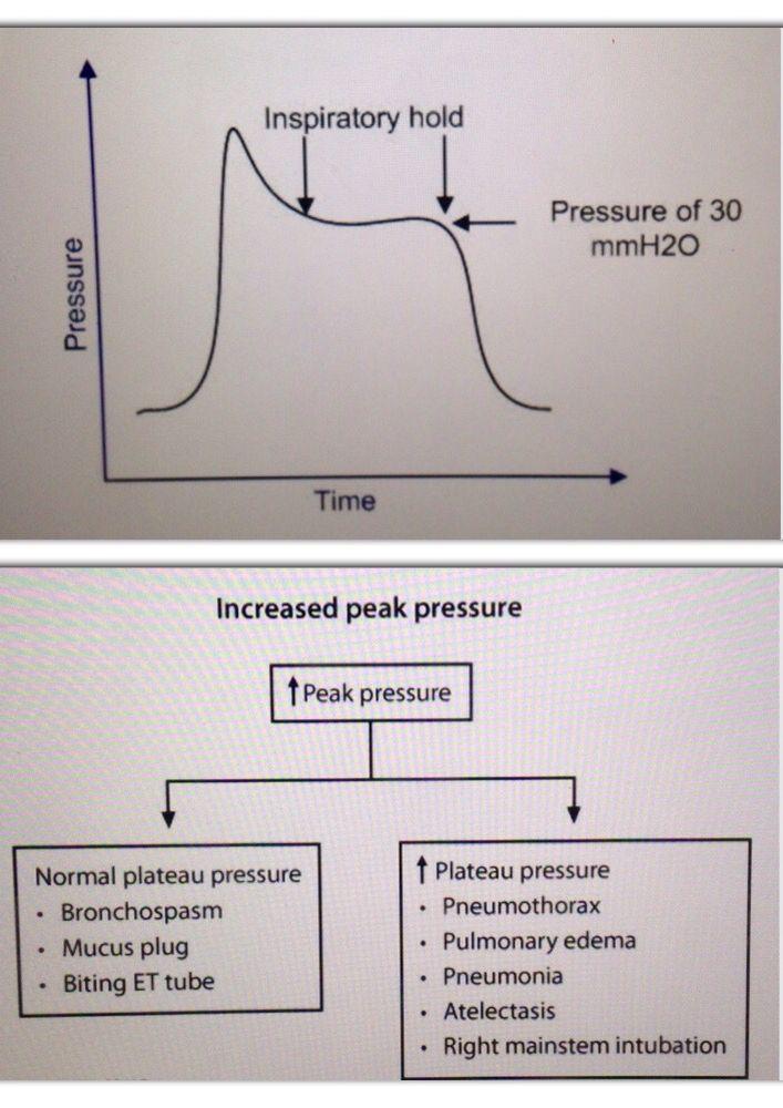 Ventilator Measurements  When A Patient Is On Mechanical