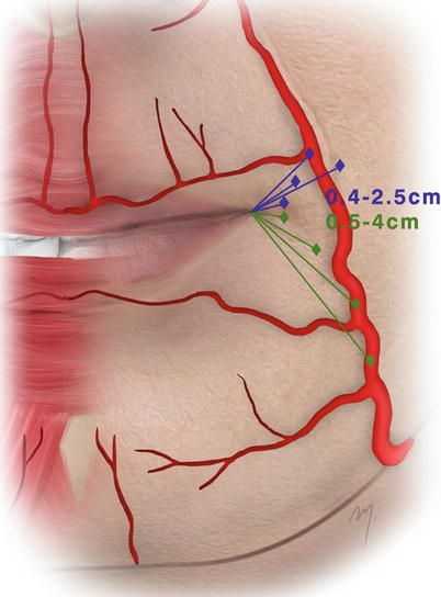 Image Result For Lip Vascular Anatomy Nurse Injector Training