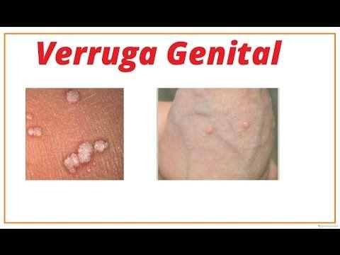 fotos de verrugas genital feminina