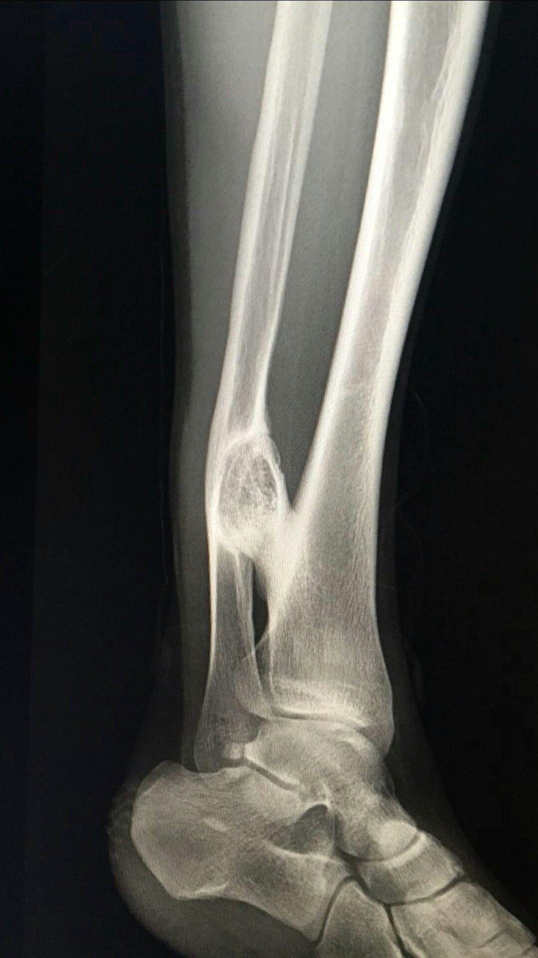 Osteokondrom Radiology, Radiologic technology, Radiology
