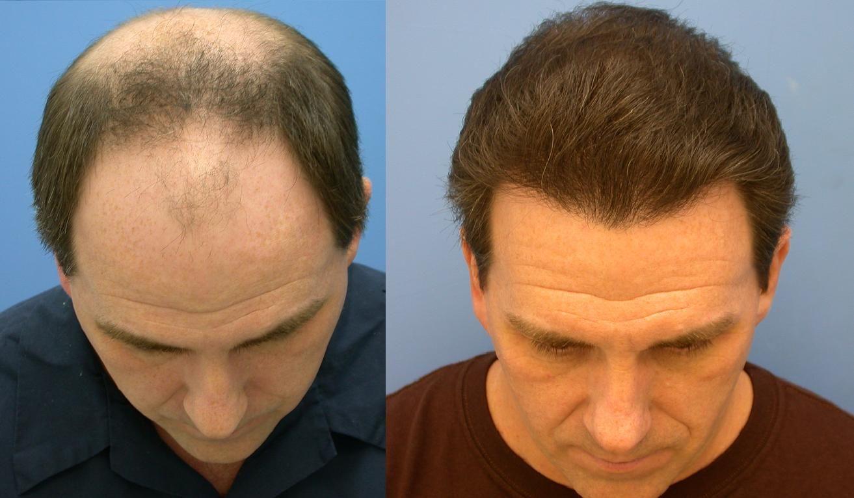 hair replacement ile ilgili görsel sonucu