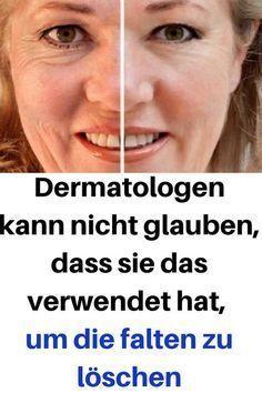 Dermatologen kann nicht glauben, dass sie das verwendet hat, um die falten zu löschen #Dermatologen #glauben #verwendet #löschen #huidverzorging