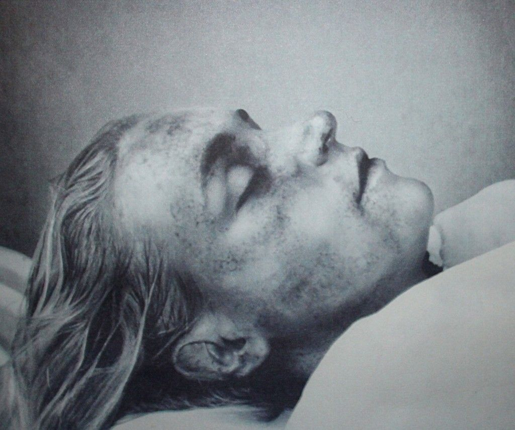 Embalming-anatomy-exhumation