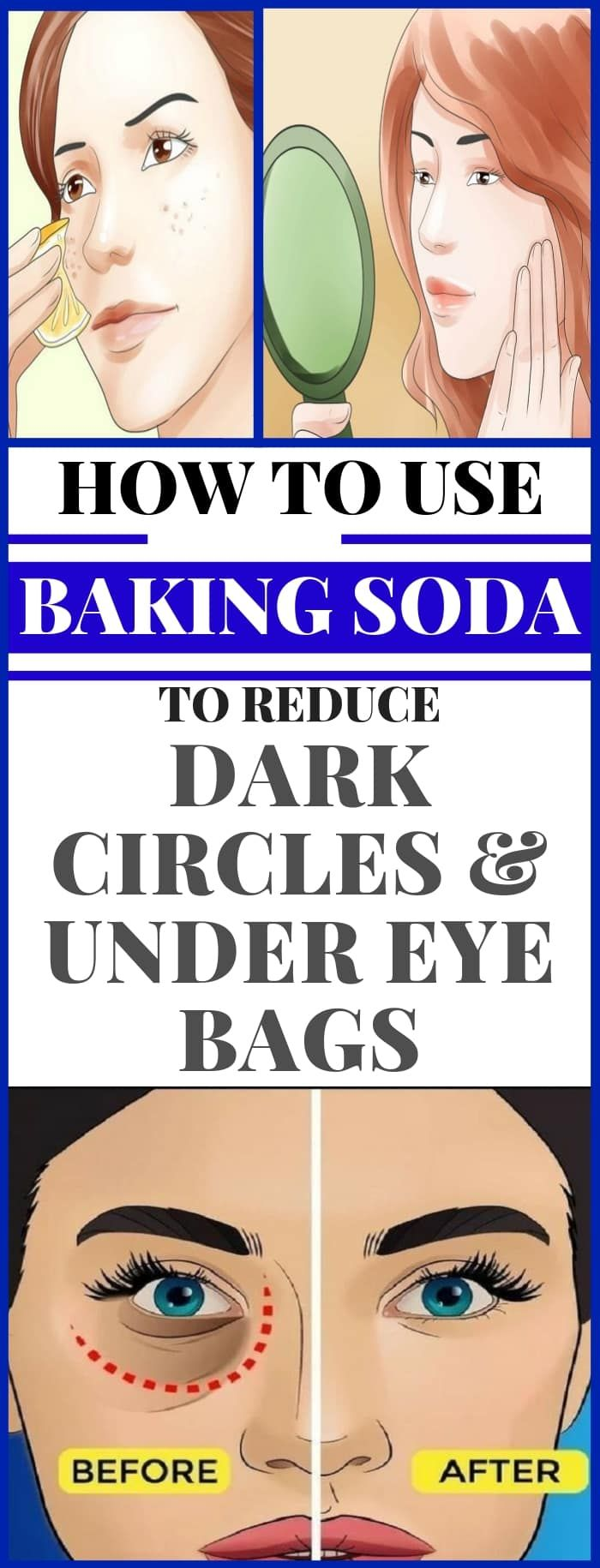 Dark circles under the eyes are a common problem for ...