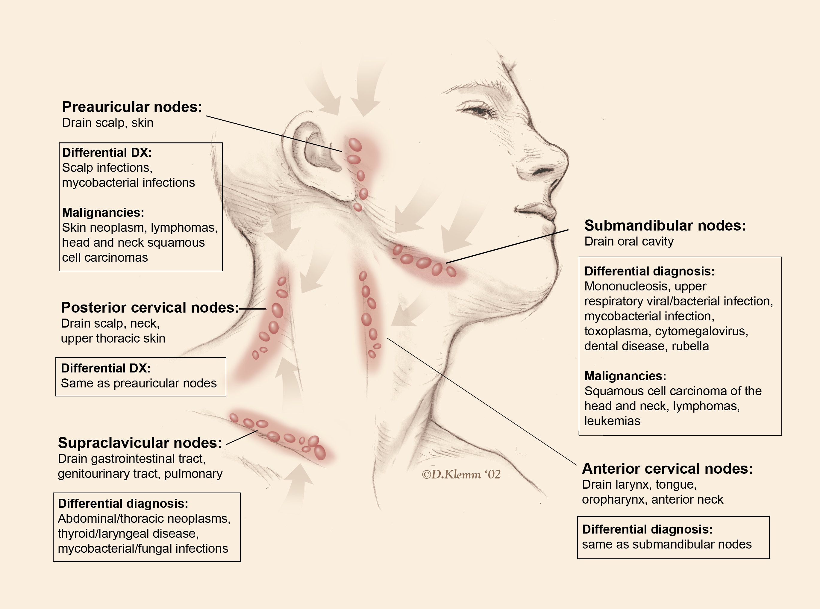 lymphadenopathy is increase in number and size of lymph nodes due to various cau ses learn all about causes of lymphadenopathy [ 2739 x 2034 Pixel ]