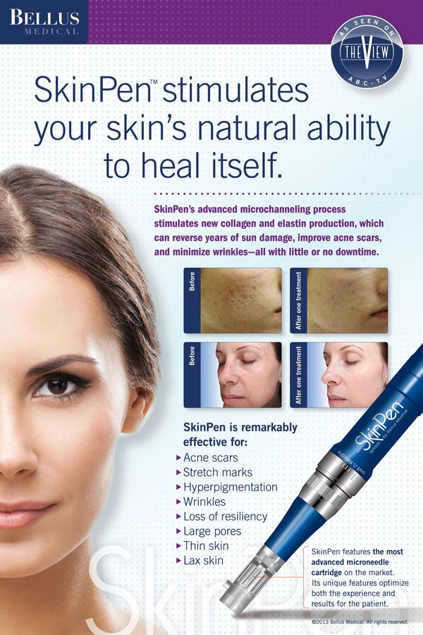 September Special Microneedling only 199. Offer expires