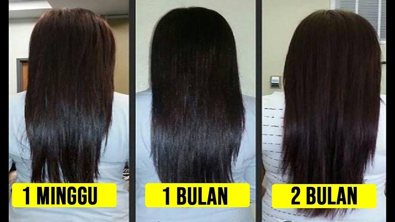 Rambut Berkilau Yang Panjang Dan Kuat Menjadi Impian Banyak Wanita Banyak Cara Dilakukan Agar Rambut Tidak Rusak Dan Mengalami Ke Rambut Rontok Rambut Ketombe