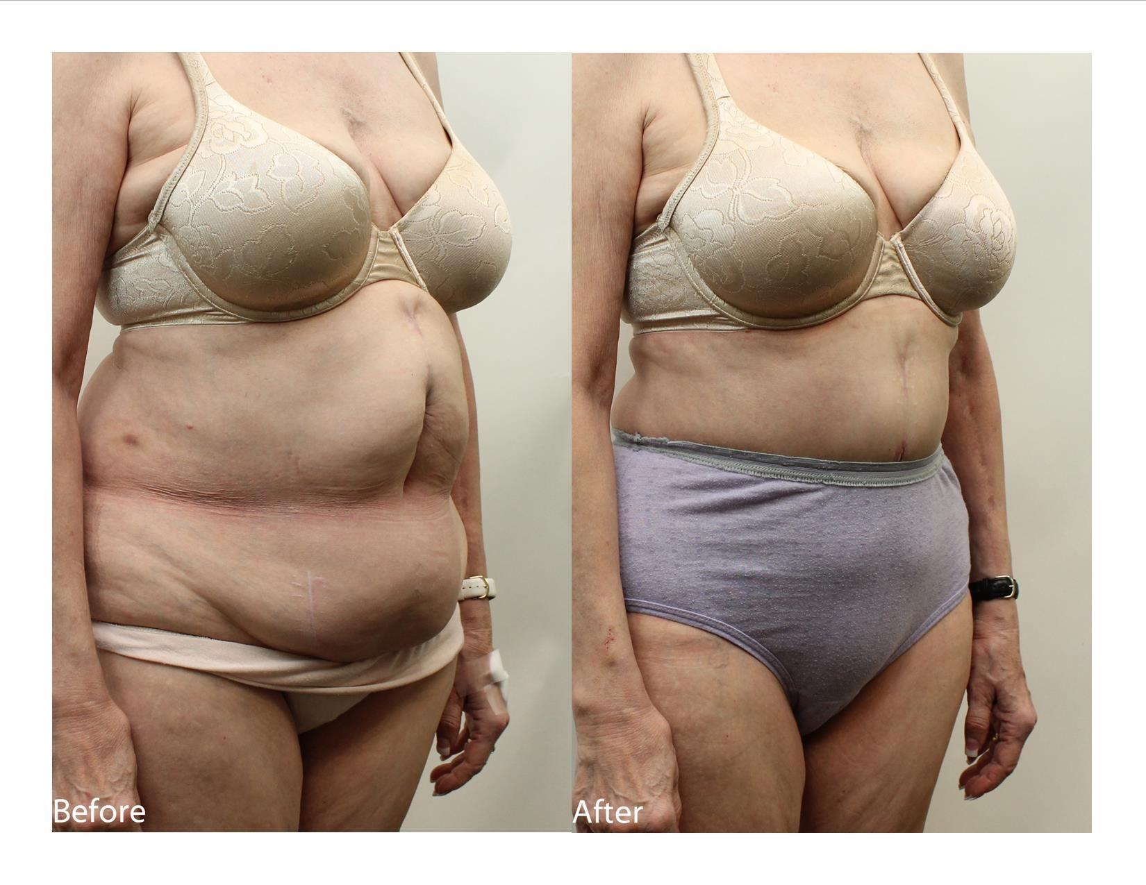 Achieve weight loss dyersburg