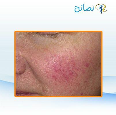 حساسية الجلد أنواعها وطرق علاجها نستطيع أن نق سم حساسية الجلد والأمراض المشابهة لها إلى ثلاث أنواع حساسية الجلد الحادة النا Health Tips Helping People Health