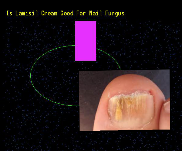 Is Lamisil Cream Good For Nail Fungus Remedy You Have Nothing To