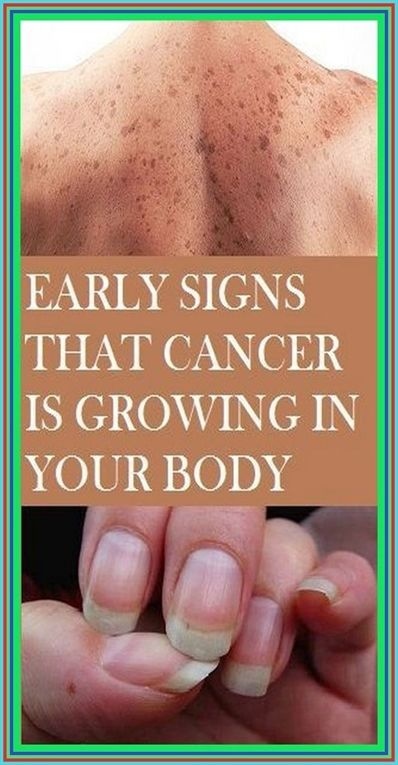 20 Warning Signs That Cancer Is Growing In Your Bo