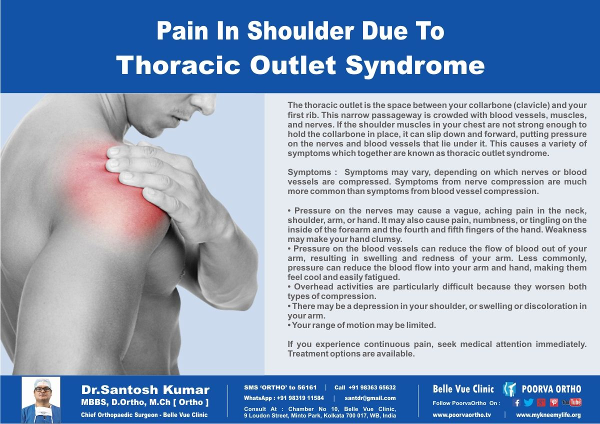 Shoulder Pain Due To Thoracic Outlet Syndrome Know It Check If You Have These Symptoms Call Helpline 91 9836365632 Visit Poorvaorthotv SMS