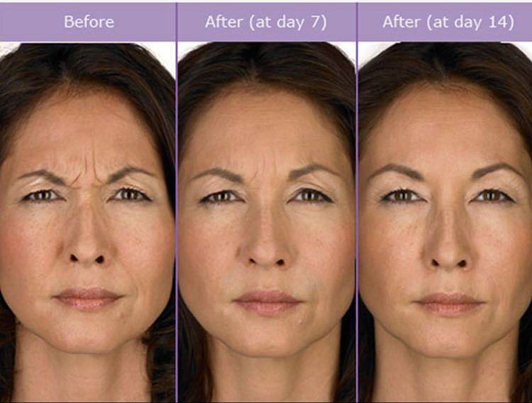 who does botox
