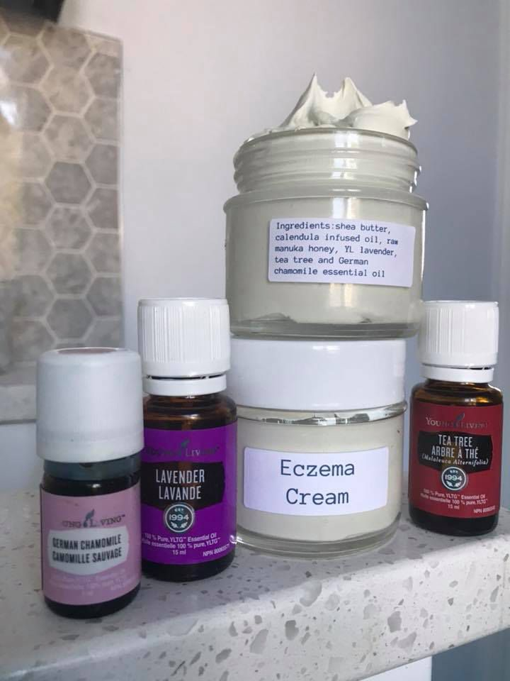 Eczema relief with images essential oils for eczema