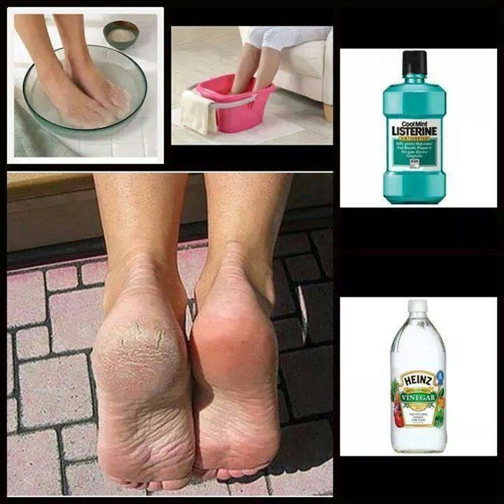Effective for summer feet :-)
