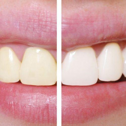 Zo krijg je hagelwitte tanden zonder je tanden te bleken!