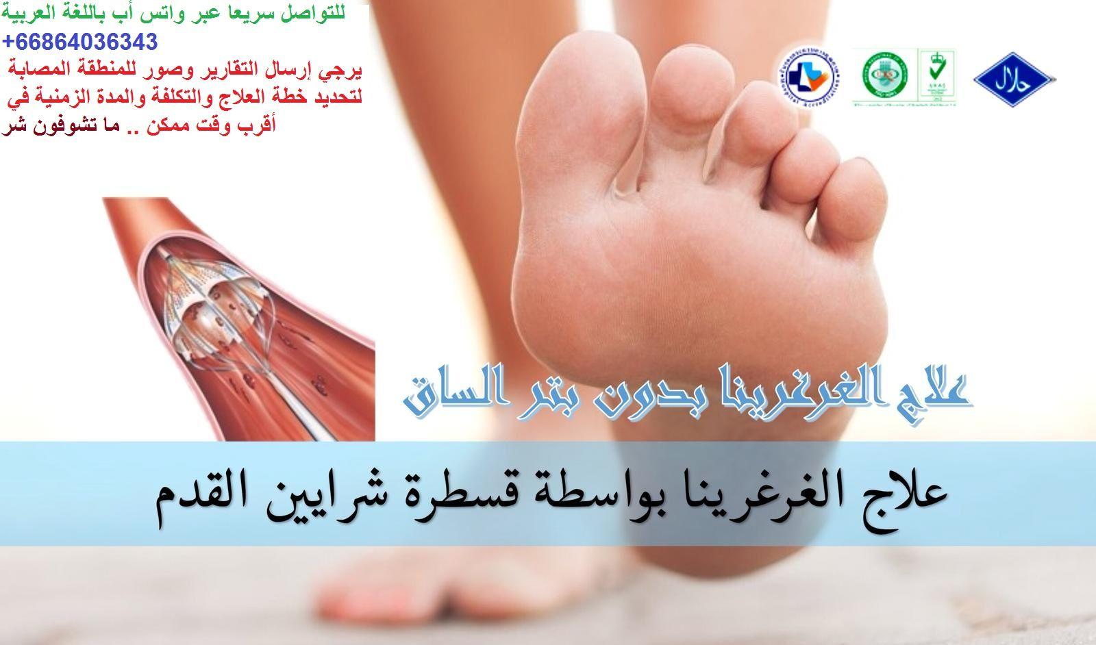 تريد علاج القدم السكري Foot Diabetes و الغرغرينا Gangrene بعيدا عن خطر بتر القدم تفضل معنا