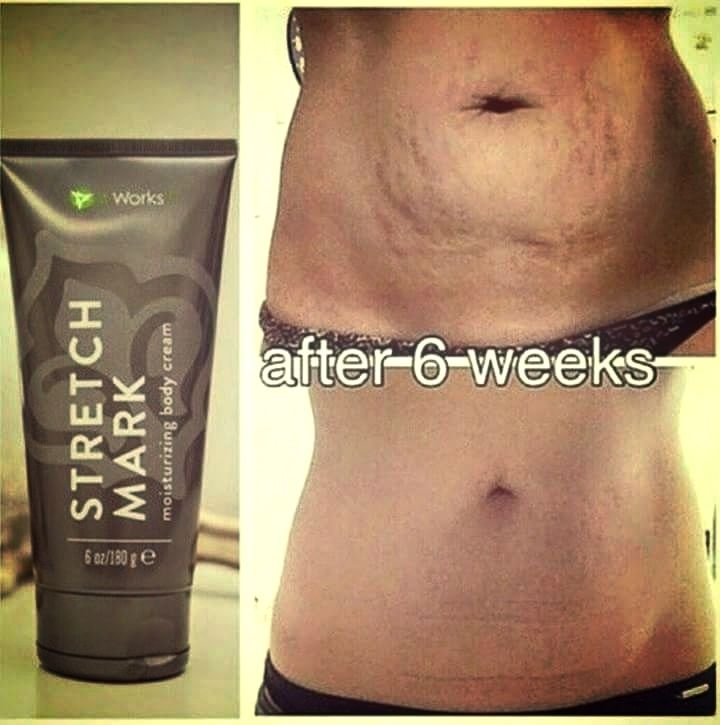 I Am Looking For 3 Women To Try Our Stretch Mark Cream For 3