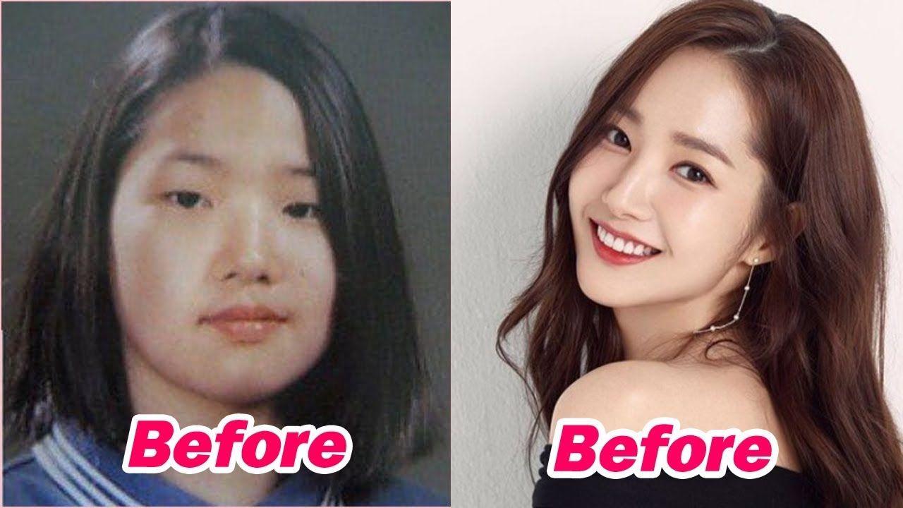 13 Korean Celebrities Who Undergo Plastic Surgery